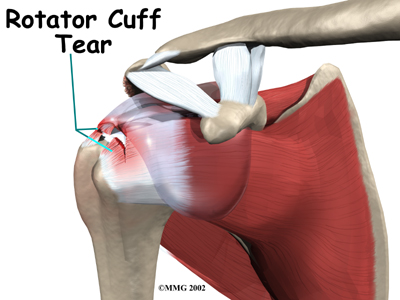 shoulder_biceps_tendonitis_causes01
